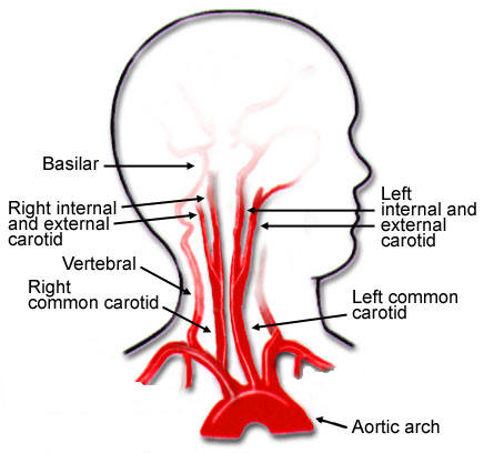 cervicocerebral-arteries.jpg