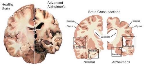 Normal brain vs. Alzheimers brain