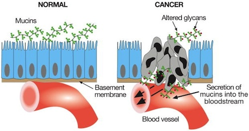 Cancer cells secrete mucins into the bloodstream