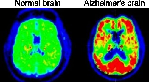 Brain scans of normal and Alzheimer's disease brains