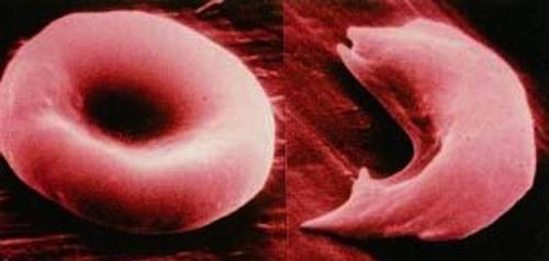 Normal hemoglobin vs sickle cell