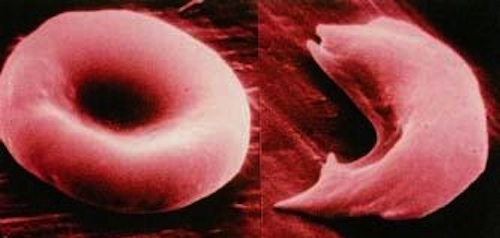 Normal hemoglobin vs sickle cell