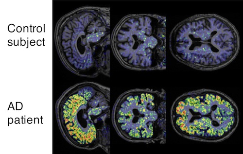 Imaging agent for amyloid detection to aid diagnosis of Alzheimers disease