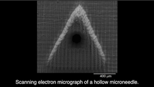 Scanning electron micrograph of a microneedle