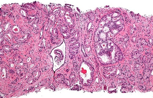 Micrograph of prostate cancer