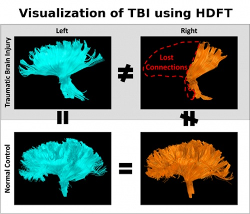 Visualization of TBI using HDFT