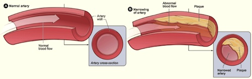 Normal artery vs narrowing of artery