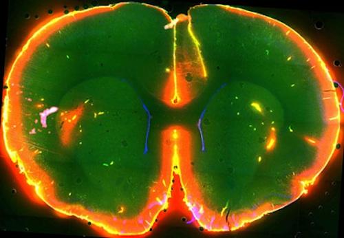 Dye flow through the brain of a sleeping mouse