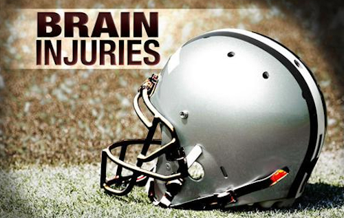 NIH NFL brain injuries