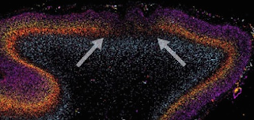 Patch-like areas of disrupted neurons